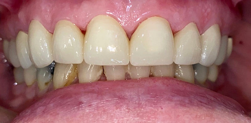 Smile gallery case after porcelain crowns placement, Luck Dental Clinic