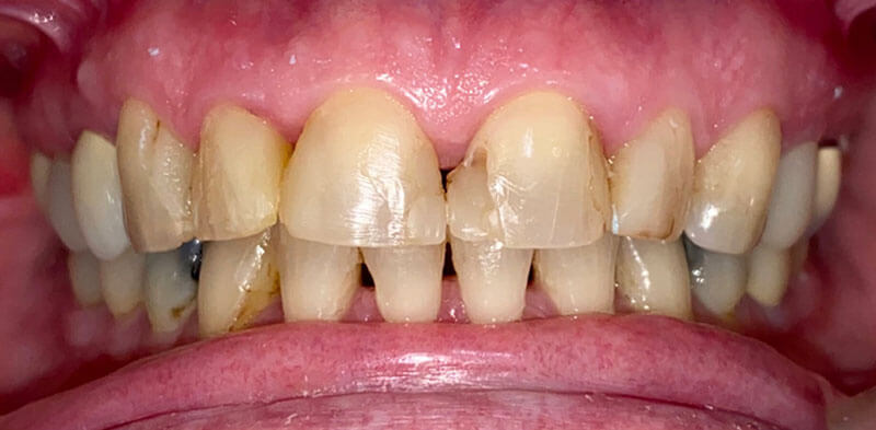 Smile gallery case of damaged teeth before porcelain crowns placement, Luck Dental Clinic