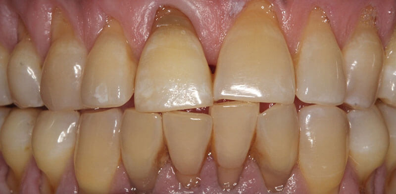 Smile gallery case after internal bleaching treatment, Luck Dental Clinic