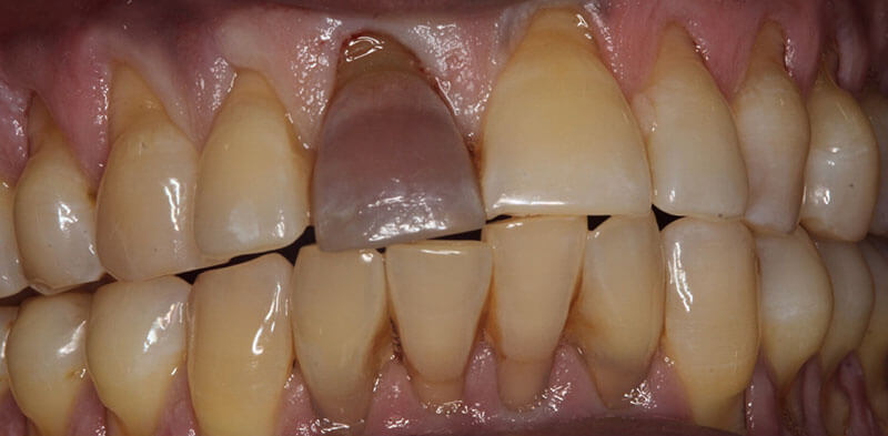 Smile gallery case showing a dark front tooth before internal bleaching treatment, Luck Dental Clinic