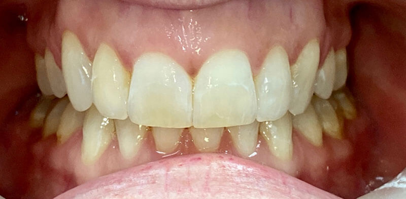 Smile gallery case after Invisalign treatment, Luck Dental Clinic