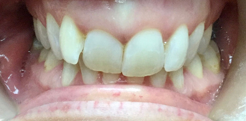 Smile gallery case before Invisalign treatment, Luck Dental Clinic