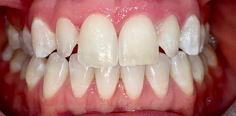 Smile gallery case after a resin infiltration treatment, Luck Dental Clinic