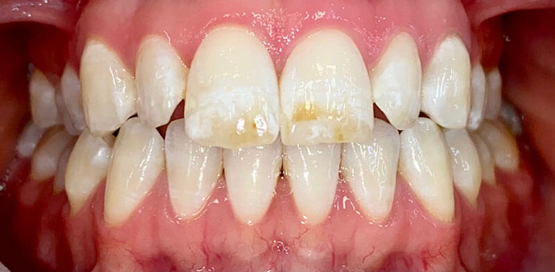 Smile gallery case before a resin infiltration treatment, Luck Dental Clinic