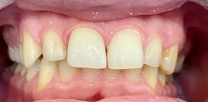 Smile gallery case after a single crown restoration, Luck Dental Clinic