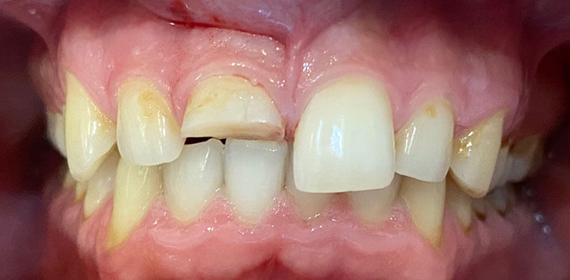 Smile gallery case before treatment showing a broken front tooth, Luck Dental Clinic