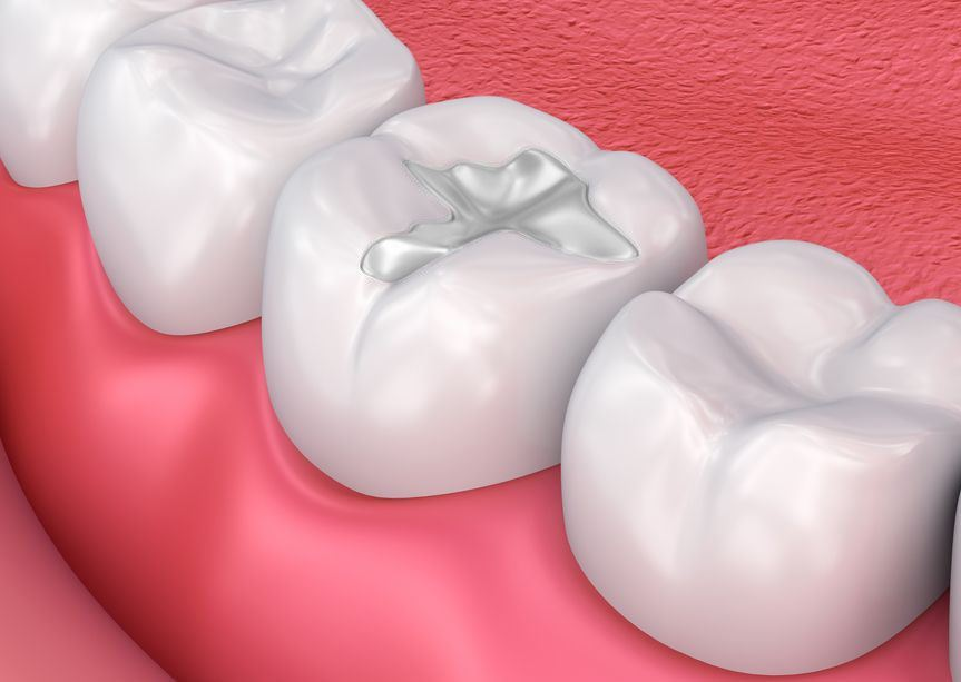 Composite Dental Fillings Vs. Amalgam