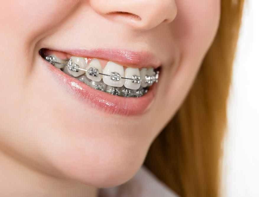 Luck orthodontic patient