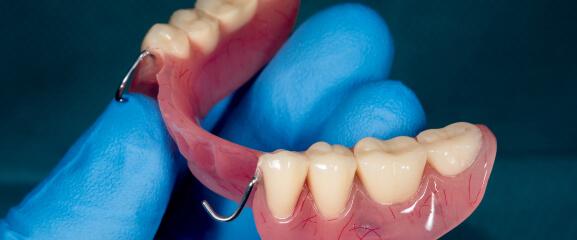 A set of partial dentures