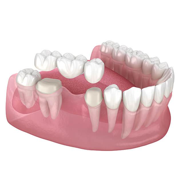 A mock up of a dental bridge